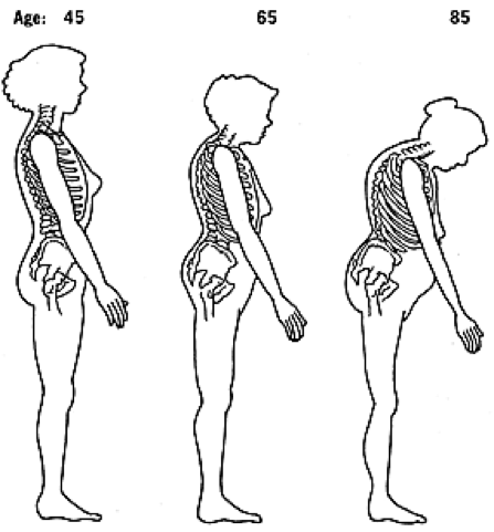 Anatomy graphic showing women's skeletal posture as they age