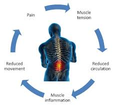 A chart showing the connection between muscle tension, reduced circulation, muscle inflammation, reduced movement, and pain