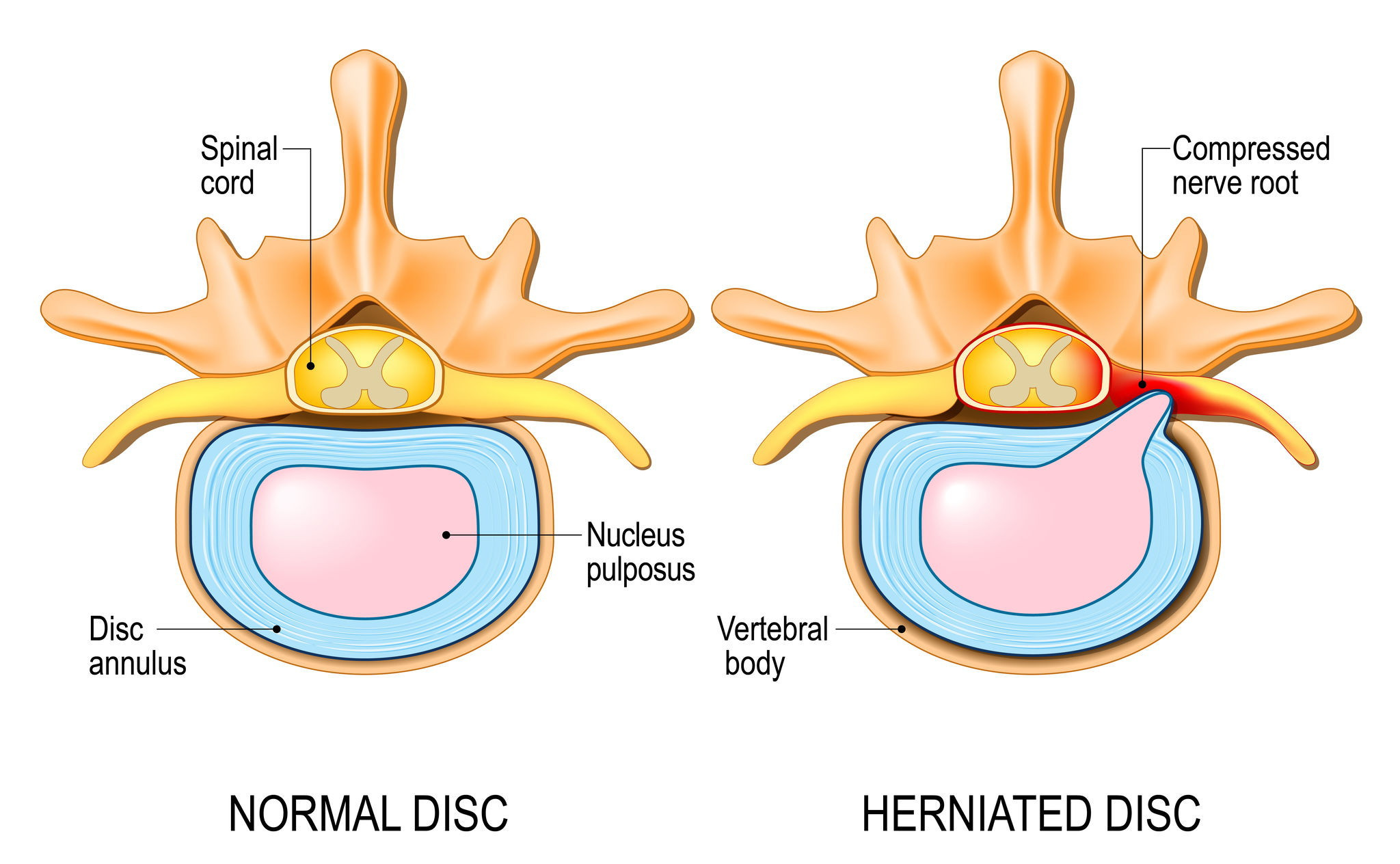 Herniated disc, compressed disc, pain, numbness, weakness