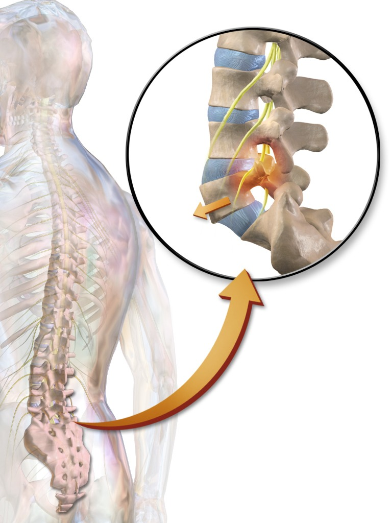 Spondylolisthesis, displacement in Vertebra, forward, backward or lateral displacement
