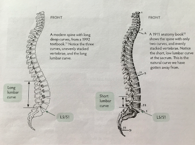 vertebrae, natural curve of the spine, poor curve of spine, spinefulness
