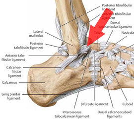 A diagram of ankle anatomy, showing the smaller outside ligaments, which get strained during inversion