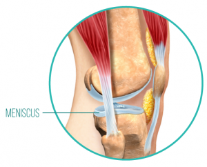 An anatomical diagram of the meniscus, a piece of cartilage between the bones, which can be damaged when the surrounding musculature of the knee joint is not strong or supportive enough