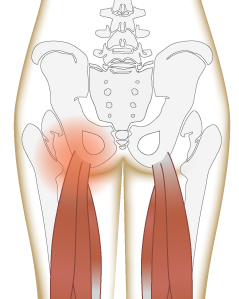An anatomical diagram of a lower butt cramp