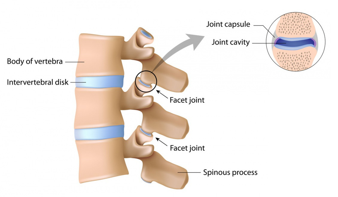 Spinal degeneration, discs breaking down, cartilage wearing away, protection missing