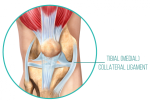 An anatomical diagram of the tibial (medial) collateral ligament, which supports the knee from the inside, and can be strained when the knee joint is not mobile